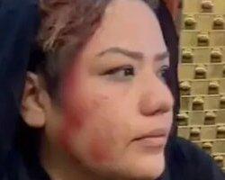 حمله وحشیانه طلبان به زنان کابل در سومین روز اعتراض